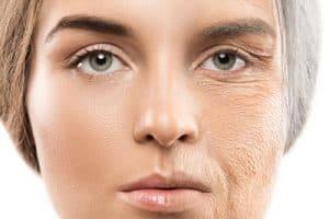 איך-לטפל-בהזדקנות-העור